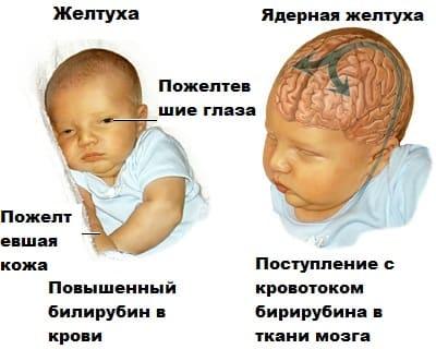 Норма билирубина у новорожденных по суткам