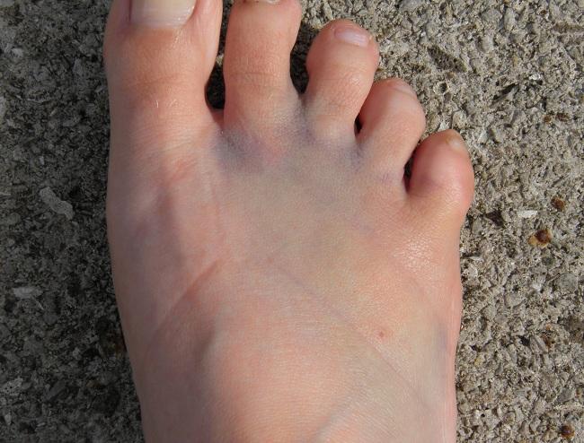 Ушиб пальца на ноге что делать