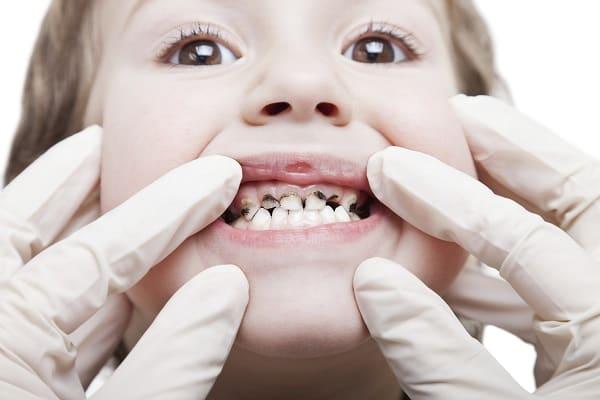 Почему у детей чернеют молочные зубы