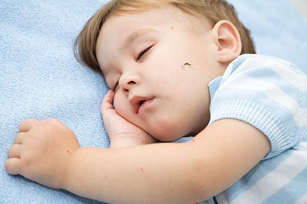 Ребенка покусали комары: Как защитить себя и ребенка