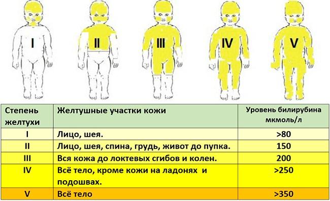 Нормы билирубина у новорожденных